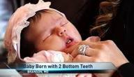 ولادة طفلة أميركية بأسنان ثنائية أمامية!
