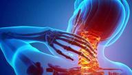 علامات وأعراض آلام الرقبة
