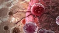 هل سرطان الدم اللوكيميا مرض وراثي