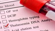 أعراض مرض الثلاسيميا
