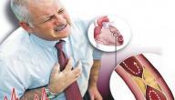 أسباب الرجفان الأذيني و طرق علاجه