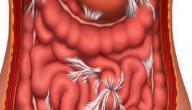 علاج انسداد الأمعاء بالأعشاب