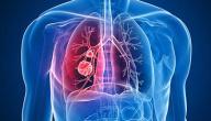 مراحل سرطان الرئة