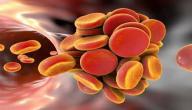 أسباب تخثر الدم