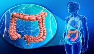 أمراض الأمعاء الغليظة