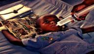 معلومات عن مرض الكوليرا