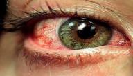 معلومات عن مرض الضمور البقعي