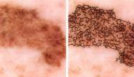أسباب سرطان الجلد