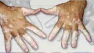 معلومات عن مرض البرص