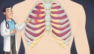 أعراض التهاب عضلات القفص الصدري