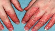 أنواع الأمراض الجلدية