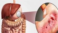 أعراض القولون الهضمي