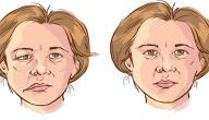 معلومات عن شلل العصب الوجهي