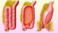 معلومات عن التهاب القولون التقرحي