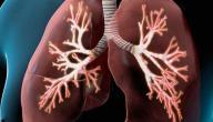 أمراض الرئة الأكثر انتشاراً