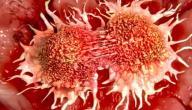 معلومات عن مرض السرطان