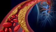 علاج الكوليسترول المرتفع