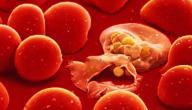 أعراض الملاريا وعلاجها