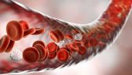 الوقاية من تسمم الدم