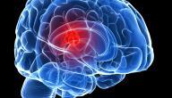 نسبة نجاح عملية ورم المخ