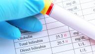ما هو تحليل TBIL