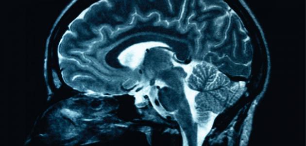دراسة: الذاكرة لا يكتمل نموها إلا في سن الرشد