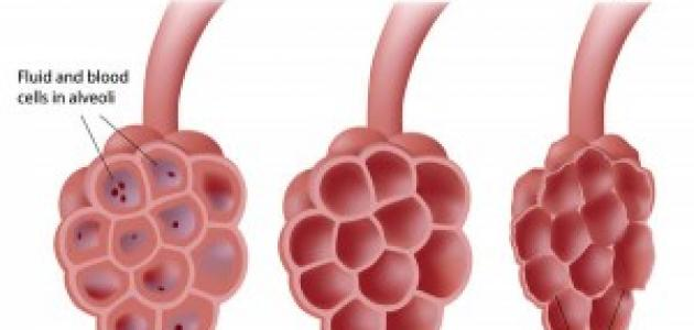 أعراض الالتهاب الرئوي المبكرة