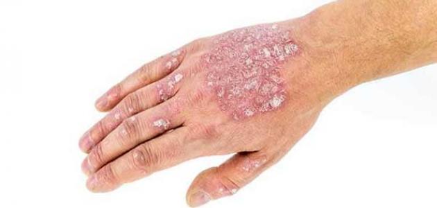 أمراض الجلد المعدية
