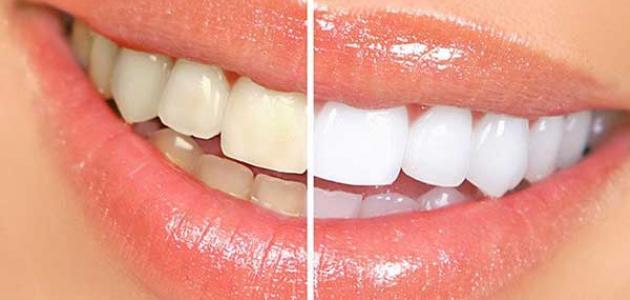 عادات وأطعمة تسبب اصفرار الأسنان