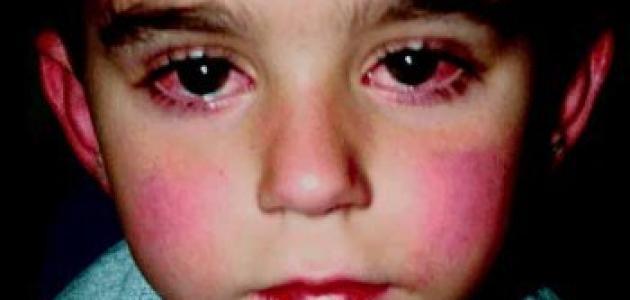 أسباب وأعراض مرض كوكساكي