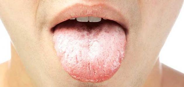 أسباب فطريات الفم