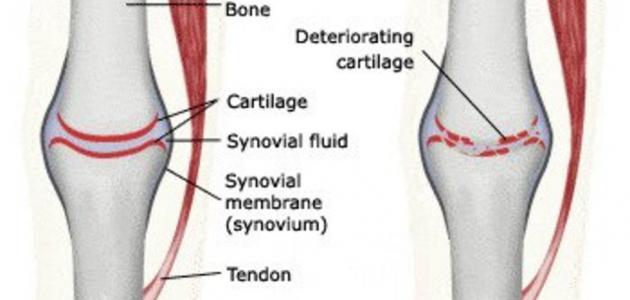 الفصال العظمي أعراضه وأسبابه