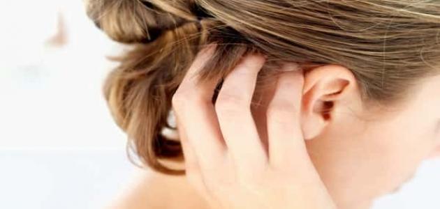 علاج حبوب فروة الرأس