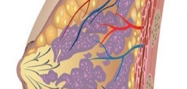 الأورام الليفية في الثدي أعراضها و علاجها