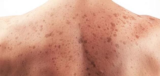 ما هي الأعراض المبكرة لسرطان الجلد