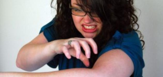 الحكة أسبابها أعراضها و علاجها