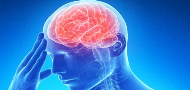 أسباب السكتة الدماغية وأعراضها