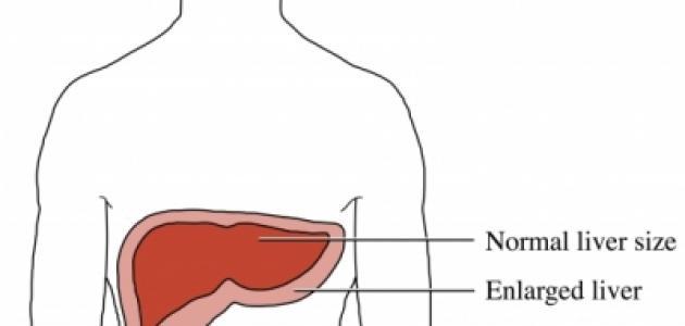 أعراض و أسباب تضخم الكبد