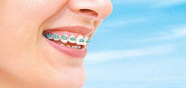 جسر الاسنان و الرائحة