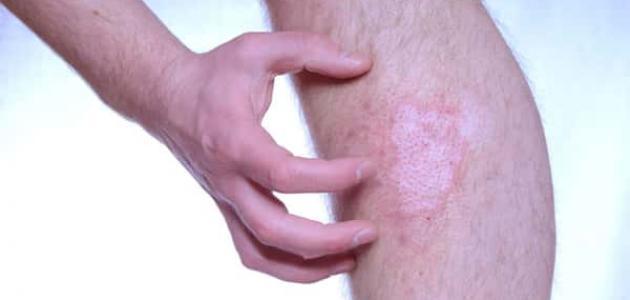 ما هي الأمراض الجلدية التناسلية