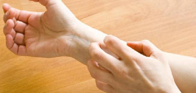 ما هو مرض التينيا