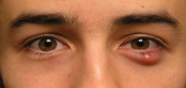 طرق علاج جنجل العين