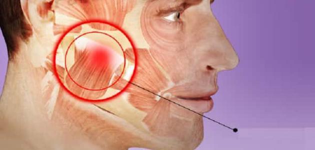 أسباب التهاب مفصل الفك
