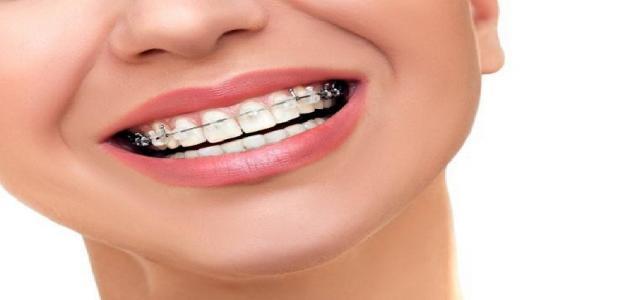 طرق تخفيف ألم تقويم الأسنان