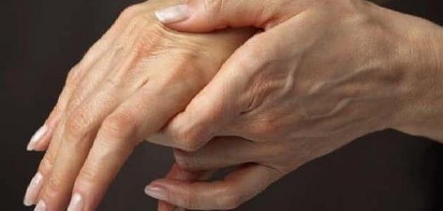 أعراض انسداد شرايين اليد