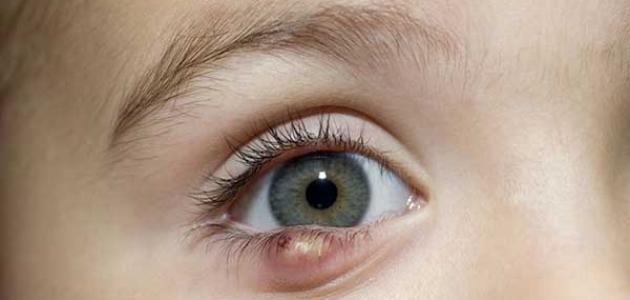0a3dba95d طرق علاج قرحة العين - موسوعة وزي وزي