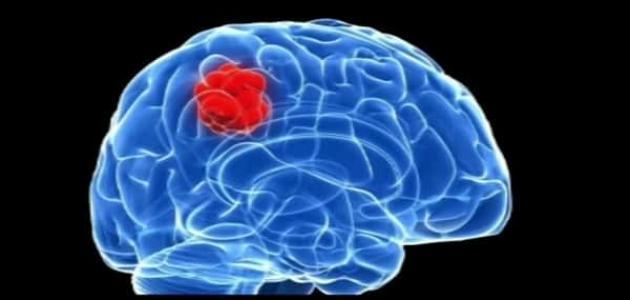أعراض ورم الدماغ الحميد