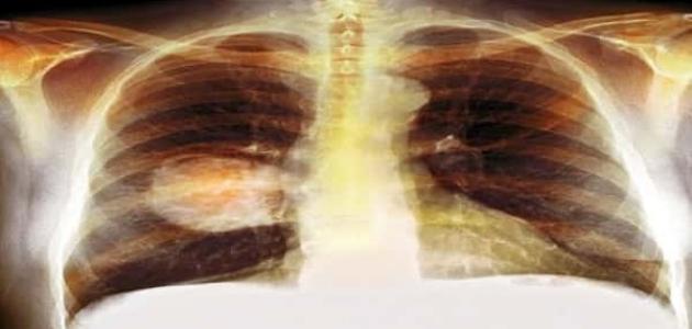 سرطان الرئة ونسبة الشفاء