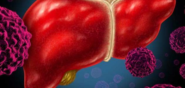 أعراض سرطان الكبد المتأخرة