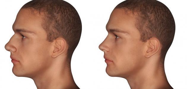 0d8b368e2 علاج الأنف الكبير عند الرجال - موسوعة وزي وزي